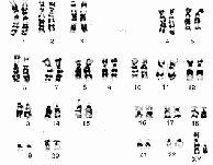 Biology Karyotype Worksheet Answers Key Lovely 10 Best Of Karyotype Worksheet Answers Biology